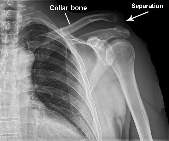 Shoulder Separation Procedures